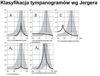 tympanometria Medincus